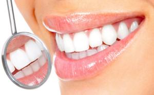 наращивание зубов до и после фото