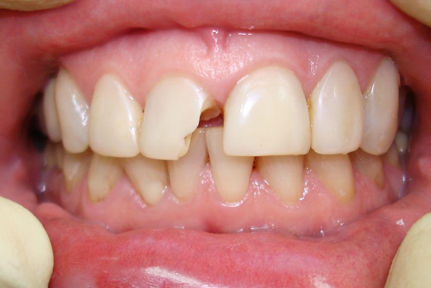 Пациентка N. 45 лет, обратилась в клинику с жалобами на скол правого центрального резца верхней челюсти