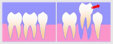 Удаление зубов по гороскопу
