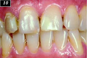 Группа зубов с композитными пломбами