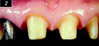 Зубы, подготовленные под новые коронки