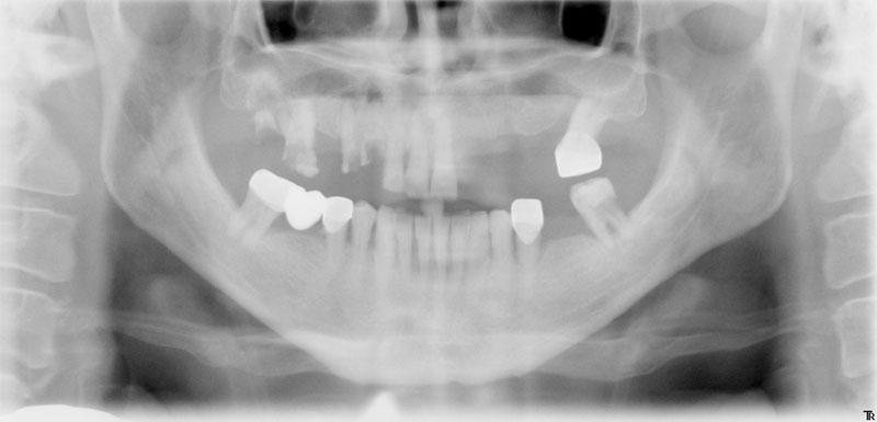 после лечения зуба запах лекарства изо рта