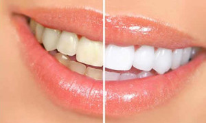 teeth-wihtening2