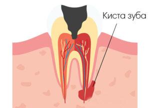 киста зуба что это такое как лечить