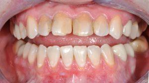 Ситуация до, разомкнутые зубы
