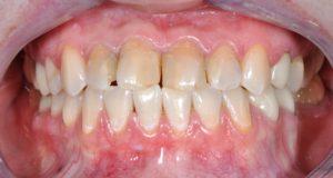 ситуация до, сомкнутые зубы