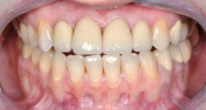 ситуация после разомкнутые зубы