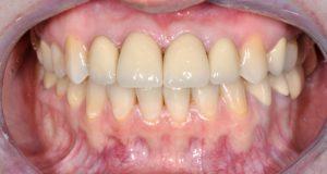ситуация после, сомкнутые зубы